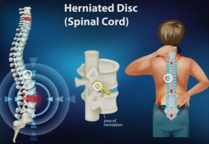what-is-a-herniated-disc-300x207
